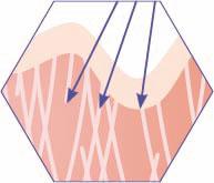 CRISTAL Skin Emission von Radiofrequenzwellen